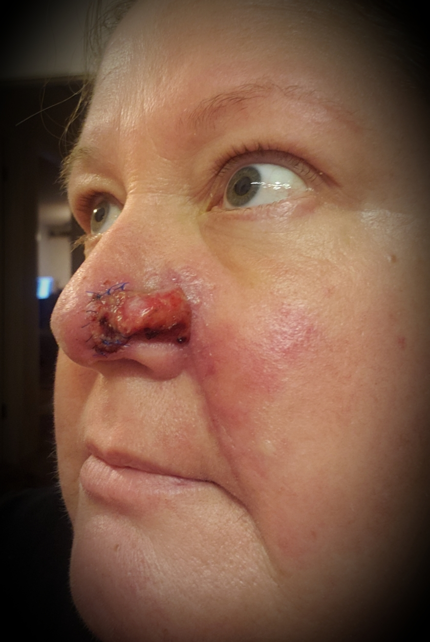 stitches out 13sep18.jpg