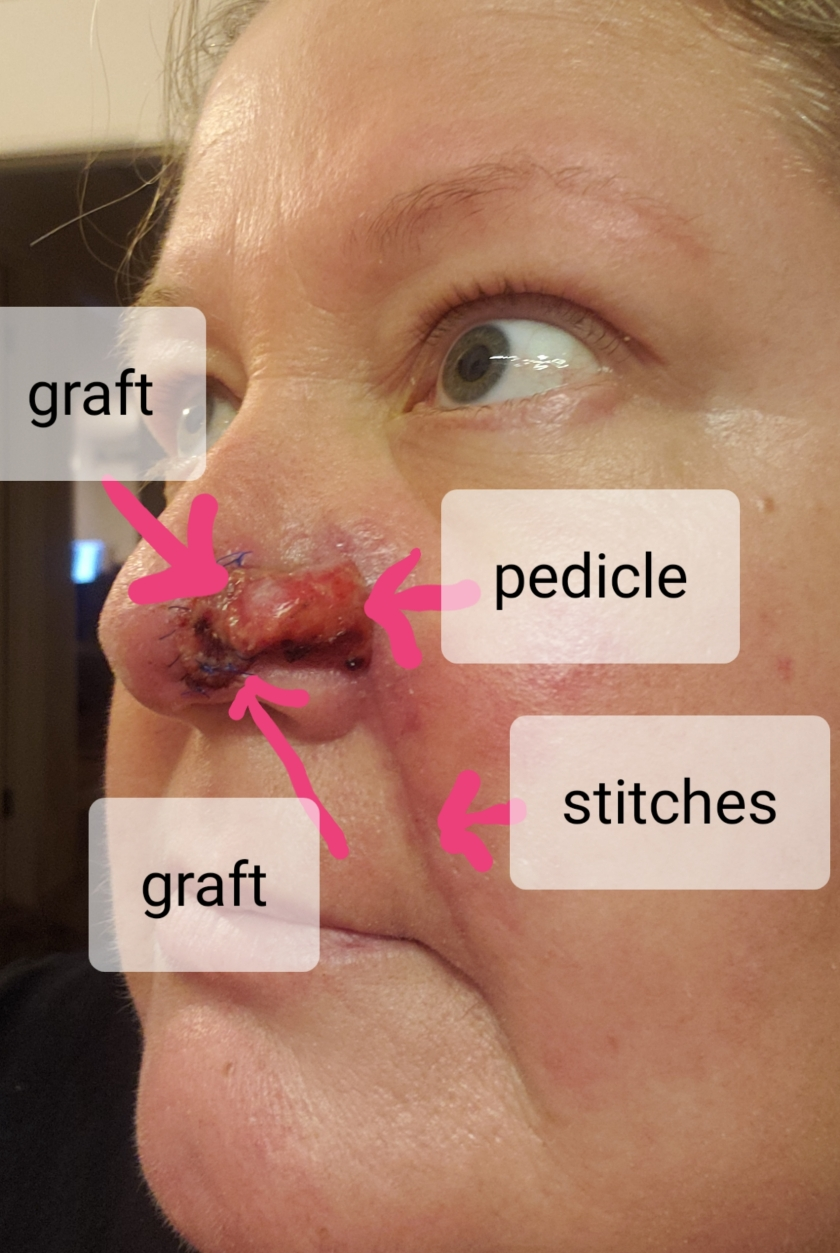 stitches out explained.jpg
